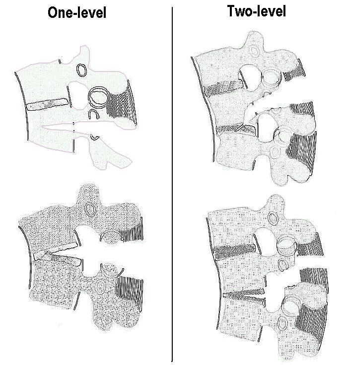 Denis' seat-belt-type fractures sybtypes